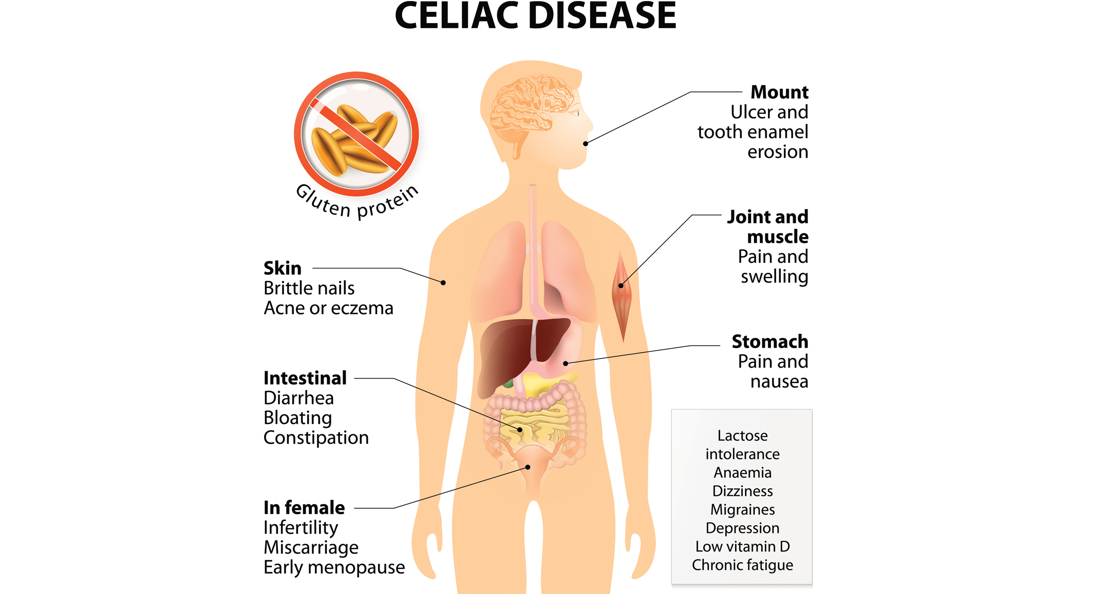 the gut microbiota influences celiac disease  thirty three percent of people have a gene that predisposes them to celiac disease (cd), while only two to five percent of the population will receive a