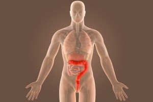 3d ulcerative extensive colitis infection with clipping path.