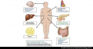 faecal microbiota transplantation
