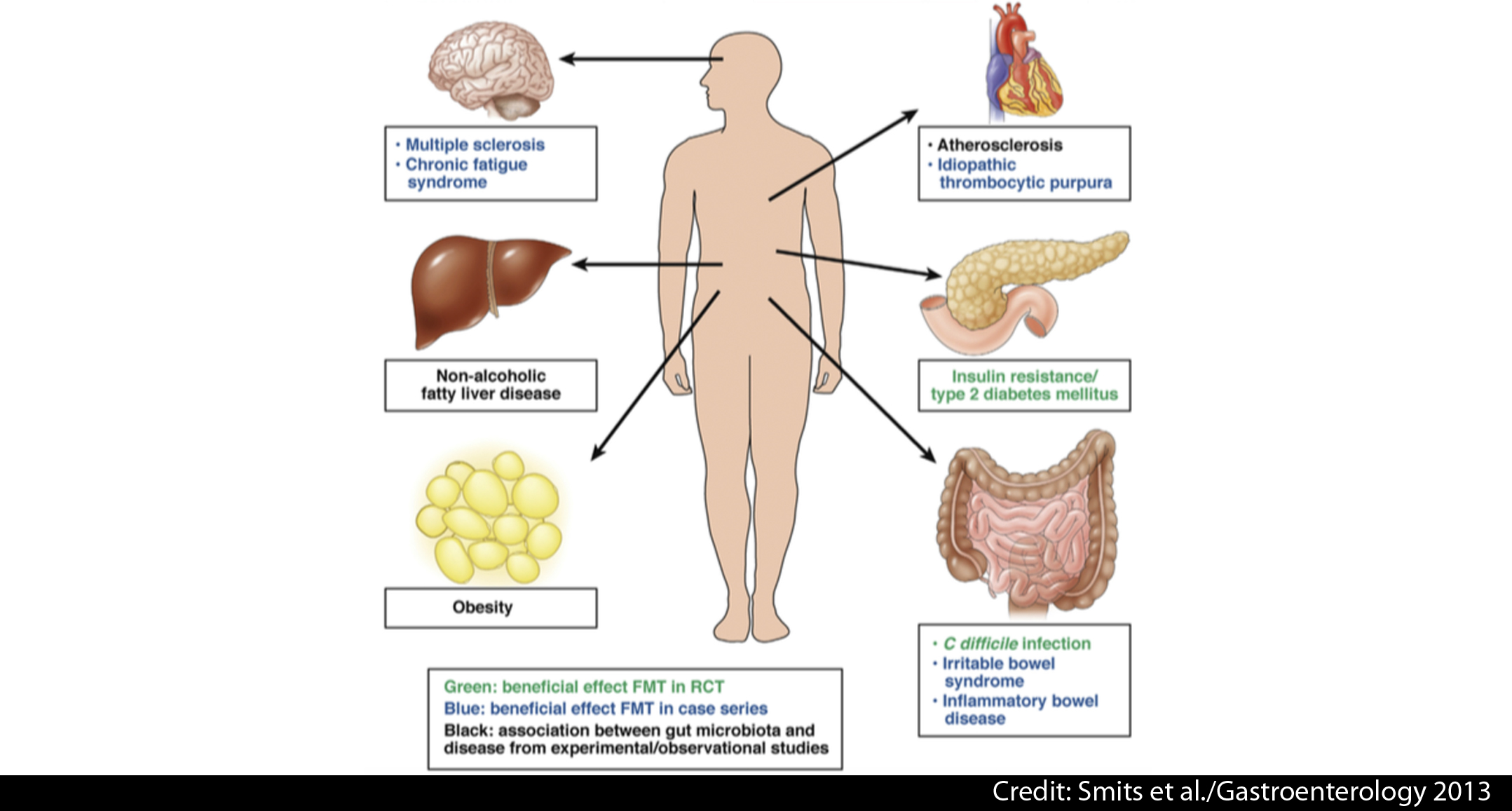 What is the current state-of-the-art of faecal microbiota