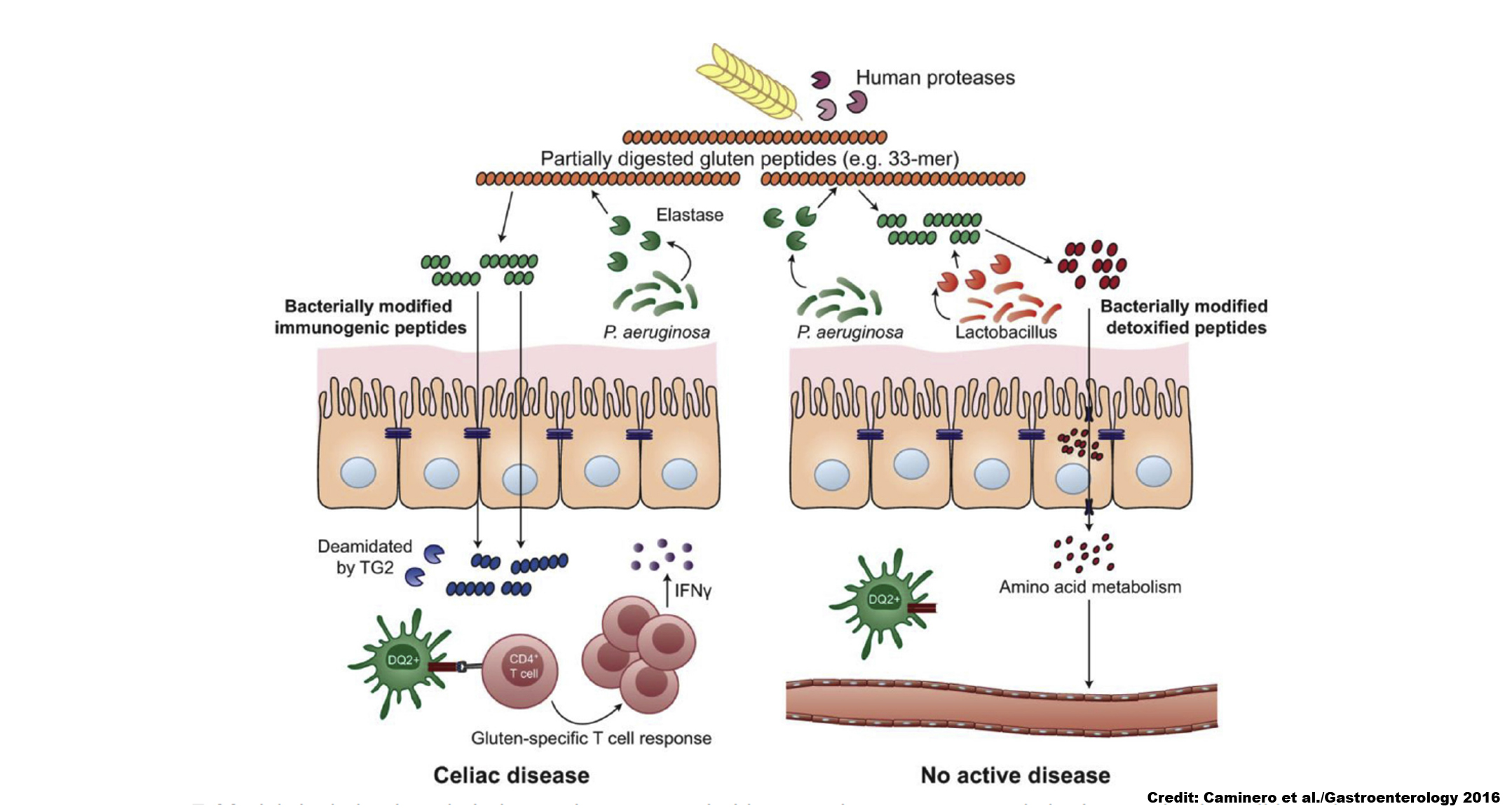 Bacteria From Celiac Patients Influence Glutens Digestion And Its