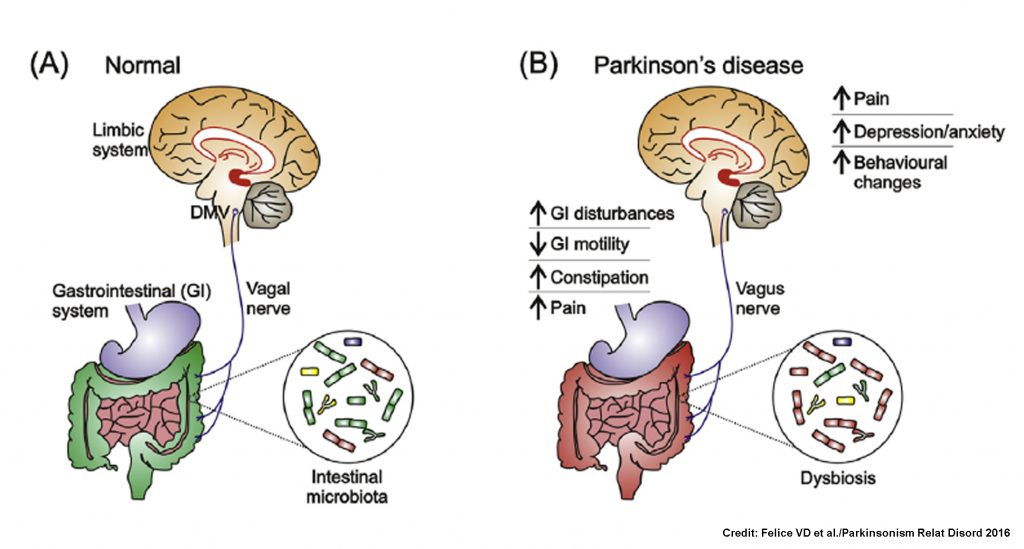 New Insights Into The Role Of Gut Microbiota In Parkinson