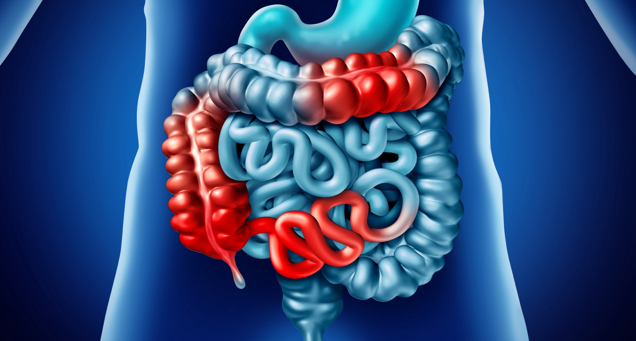 New research supports the contribution of the gut microbiota