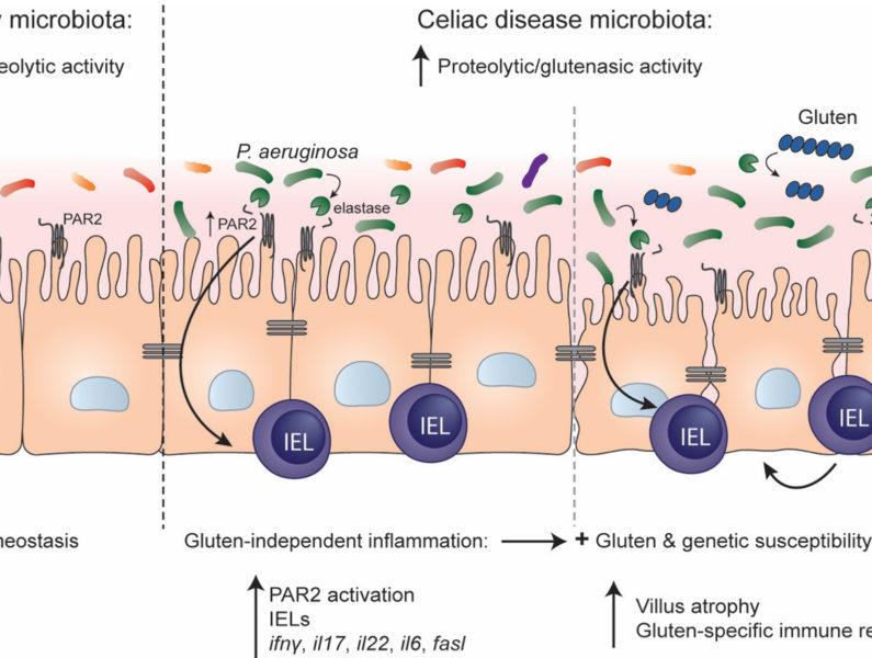 category : celiac disease