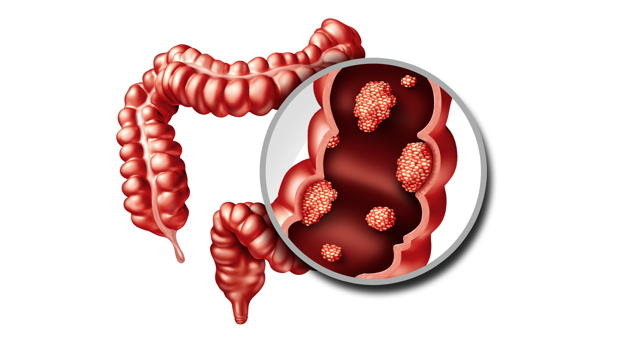 Two New Studies Reveal Universal Gut Microbiome Signatures In Colorectal Cancer